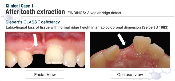 抜歯後の歯肉の状態