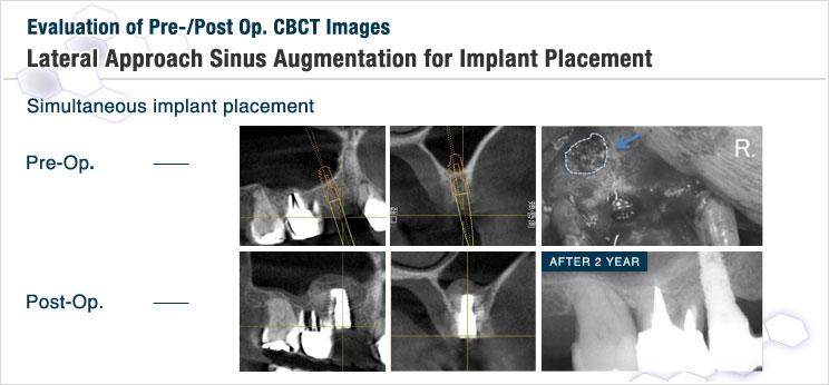 図7 サイナスリフトとインプラント同時埋入手術