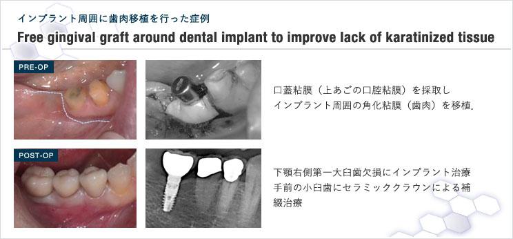 図12 インプラント周囲に角化粘膜を増やしたケース