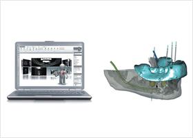 3Dプランニング・ガイデッドサージェリー