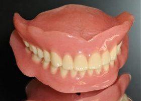 レジン床義歯(入れ歯・可撤性義歯)