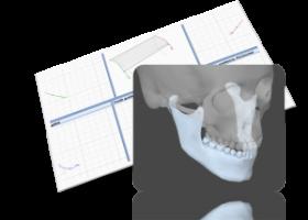 顎運動測定