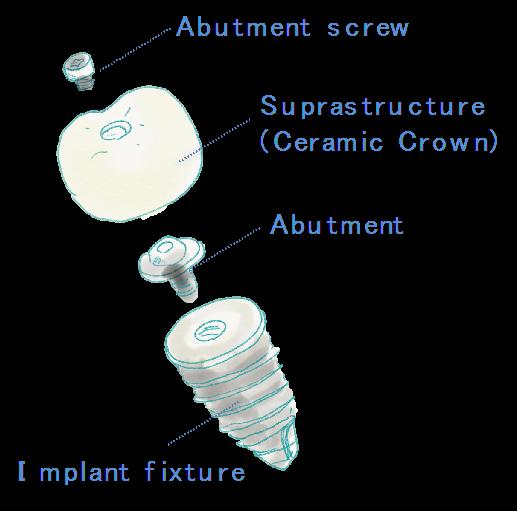 スクリュー固定式のインプラントの構造