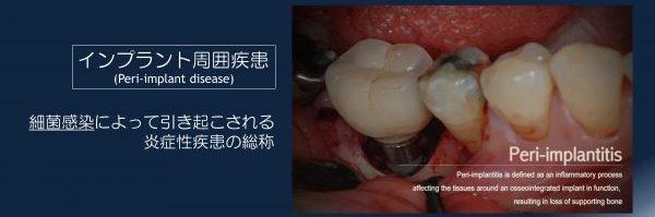 インプラント周囲疾患
