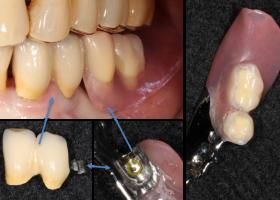 歯冠外アタッチメント